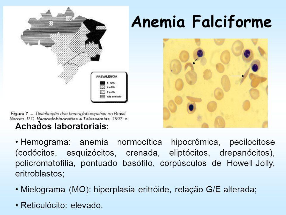 Anemias Hemolíticas Hereditariedade Formas de apresentação da doença –Homozigoto: mais grave; –Heterozigoto (traço AS – 8%): menos grave ou assintomát