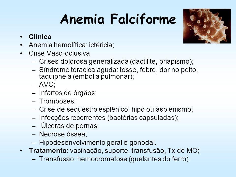 Anemia Falciforme Achados laboratoriais: Hemograma: anemia normocítica hipocrômica, pecilocitose (codócitos, esquizócitos, crenada, eliptócitos, drepa