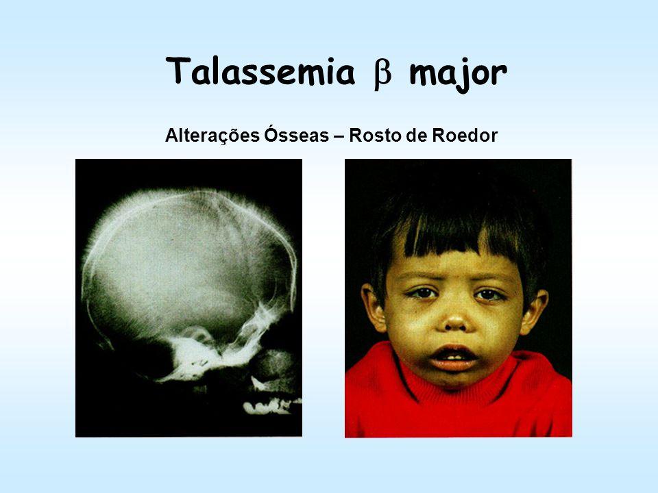 Talassemia Beta major Indivíduo 18 anos; Hepatoesplenomegalia; Infecções; Retardo no desenvolvimento Geral Gonodal; Tratamento: Tx MO, suporte, transf