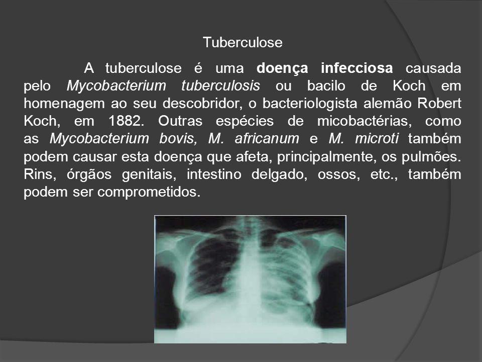 A tuberculose é uma doença infecciosa causada pelo Mycobacterium tuberculosis ou bacilo de Koch em homenagem ao seu descobridor, o bacteriologista alemão Robert Koch, em 1882.
