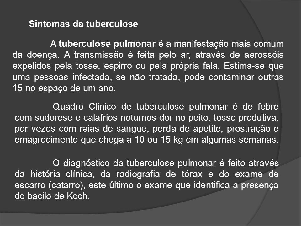 A tuberculose pulmonar é a manifestação mais comum da doença.