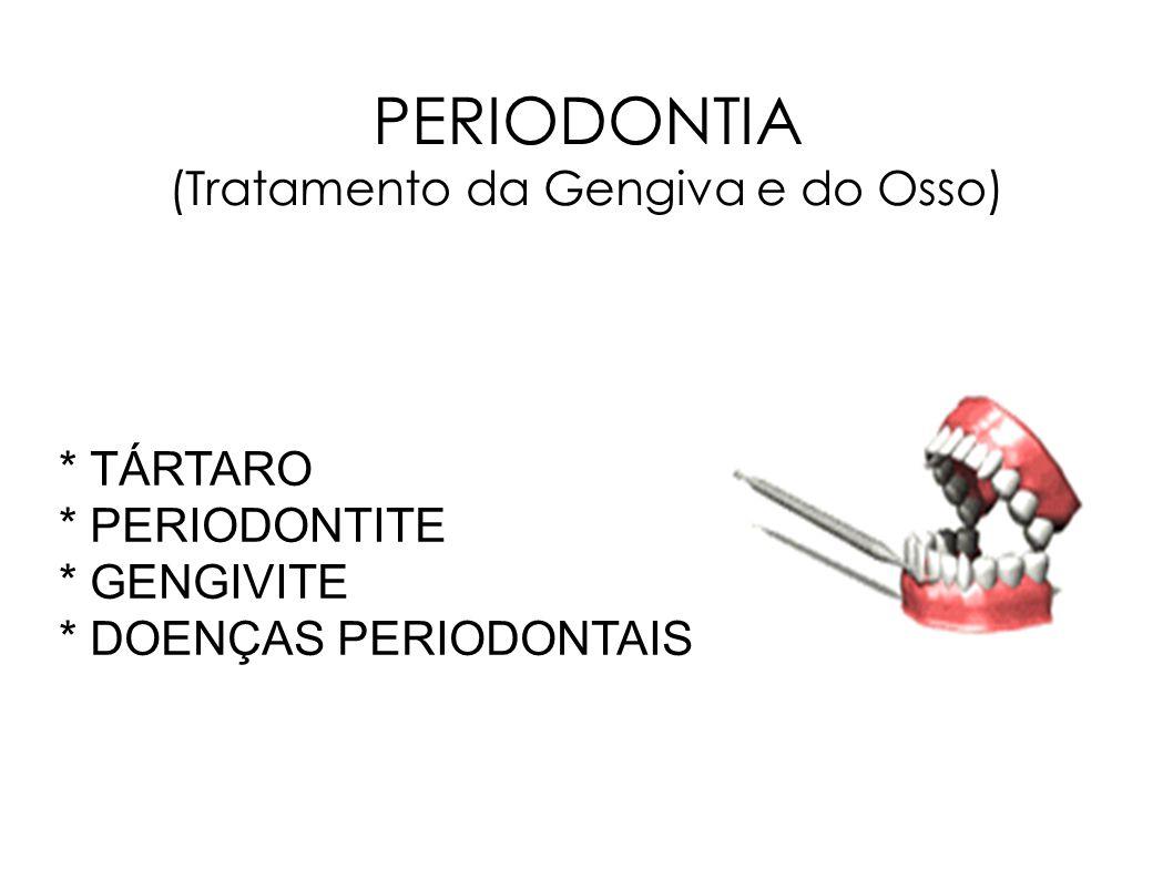PERIODONTIA (Tratamento da Gengiva e do Osso) * TÁRTARO * PERIODONTITE * GENGIVITE * DOENÇAS PERIODONTAIS