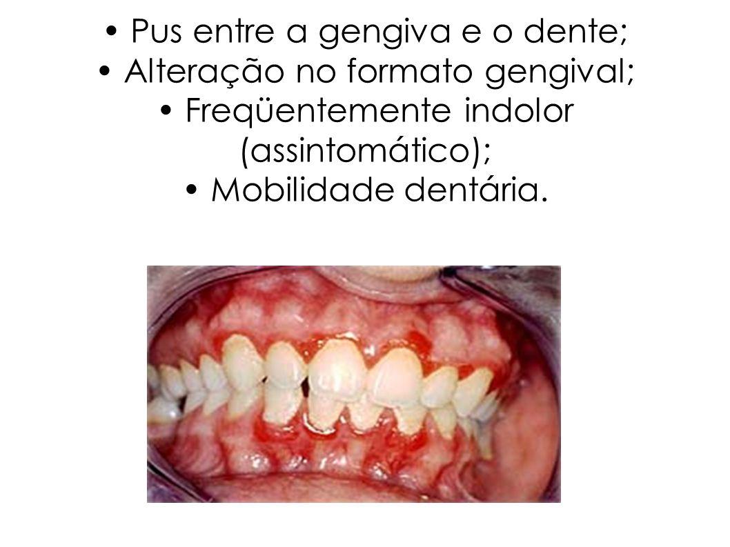 Pus entre a gengiva e o dente; Alteração no formato gengival; Freqüentemente indolor (assintomático); Mobilidade dentária.