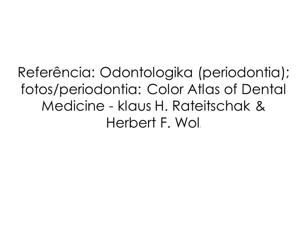 Referência: Odontologika (periodontia); fotos/periodontia: Color Atlas of Dental Medicine - klaus H. Rateitschak & Herbert F. Wol f.