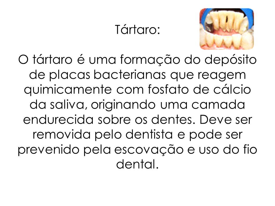 Tártaro: O tártaro é uma formação do depósito de placas bacterianas que reagem quimicamente com fosfato de cálcio da saliva, originando uma camada end