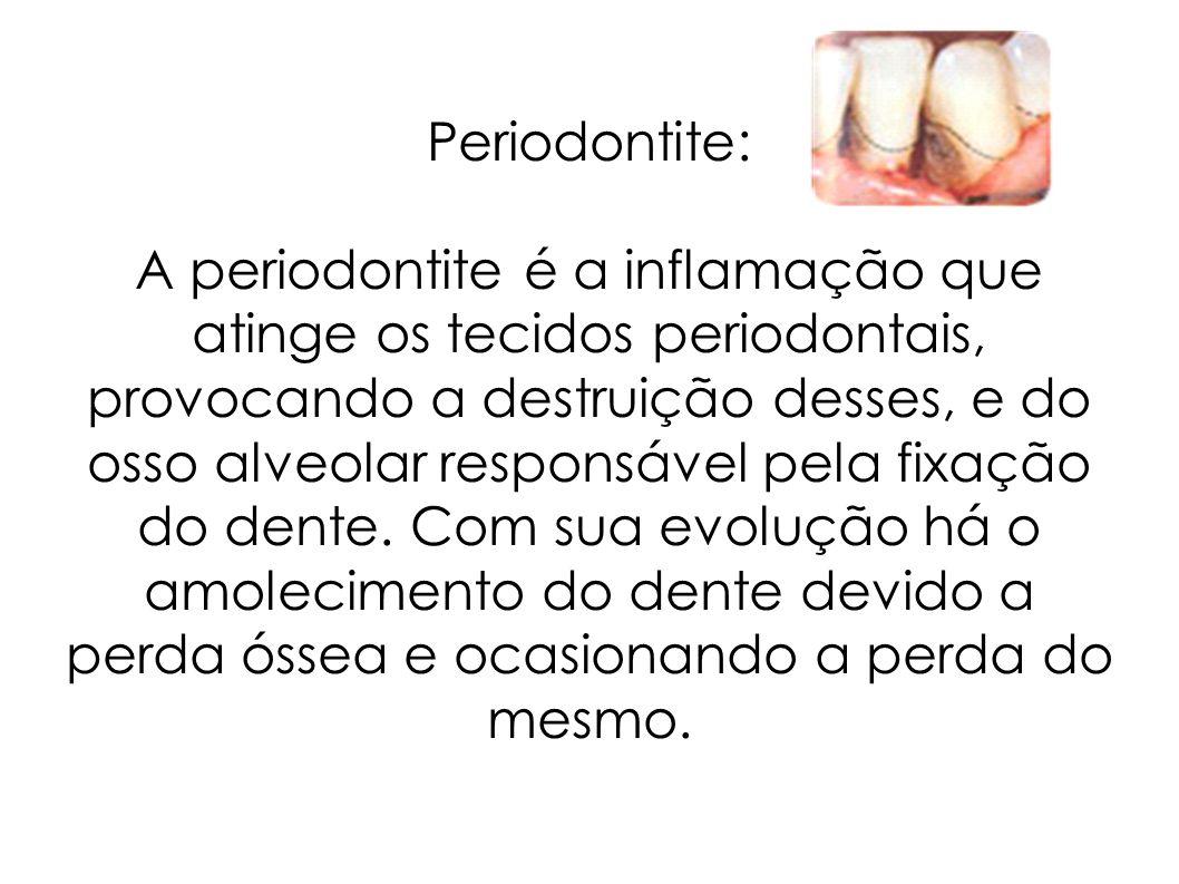 Periodontite: A periodontite é a inflamação que atinge os tecidos periodontais, provocando a destruição desses, e do osso alveolar responsável pela fi