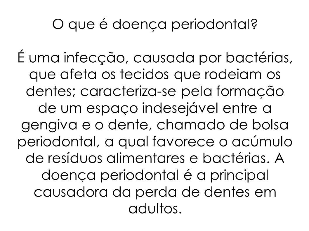 O que é doença periodontal? É uma infecção, causada por bactérias, que afeta os tecidos que rodeiam os dentes; caracteriza-se pela formação de um espa