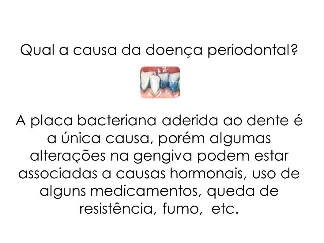 Qual a causa da doença periodontal? A placa bacteriana aderida ao dente é a única causa, porém algumas alterações na gengiva podem estar associadas a