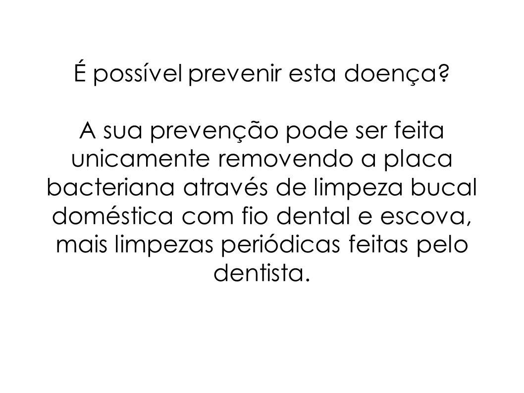 É possível prevenir esta doença? A sua prevenção pode ser feita unicamente removendo a placa bacteriana através de limpeza bucal doméstica com fio den