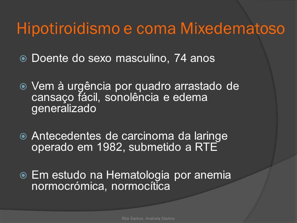 Hipotiroidismo e coma Mixedematoso Doente do sexo masculino, 74 anos Vem à urgência por quadro arrastado de cansaço fácil, sonolência e edema generali