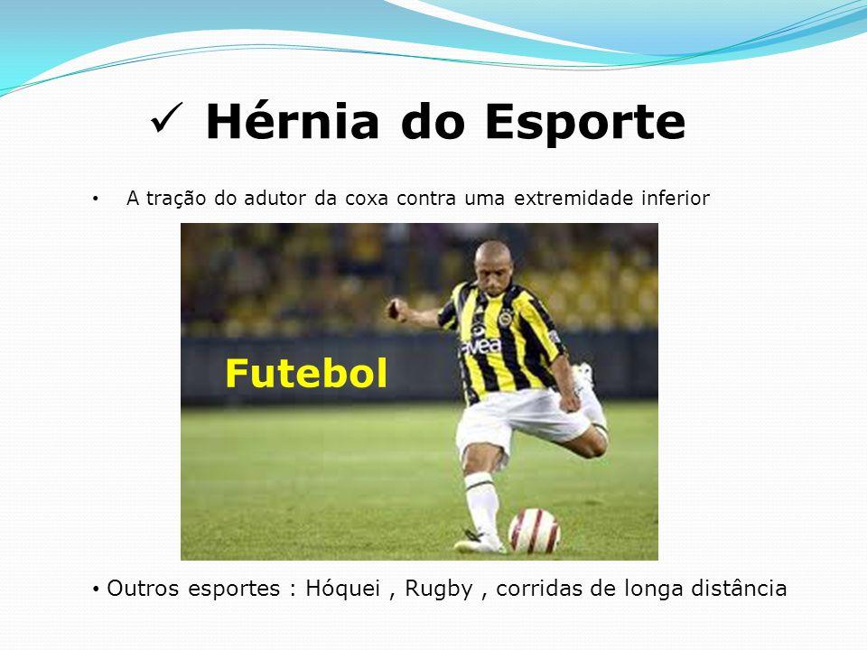 Hérnia do Esporte A tração do adutor da coxa contra uma extremidade inferior Outros esportes : Hóquei, Rugby, corridas de longa distância Futebol