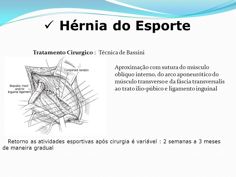 Hérnia do Esporte Aproximação com sutura do músculo oblíquo interno, do arco aponeurótico do músculo transverso e da fáscia transversalis ao trato ili