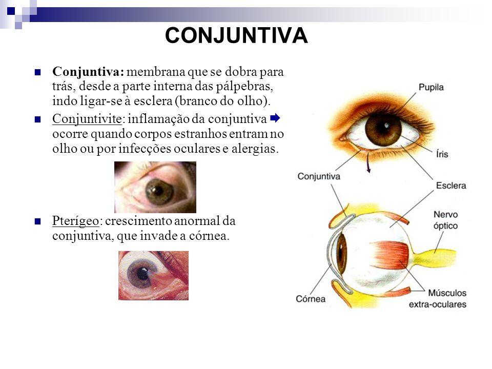 CONJUNTIVA Conjuntiva: membrana que se dobra para trás, desde a parte interna das pálpebras, indo ligar-se à esclera (branco do olho). Conjuntivite: i