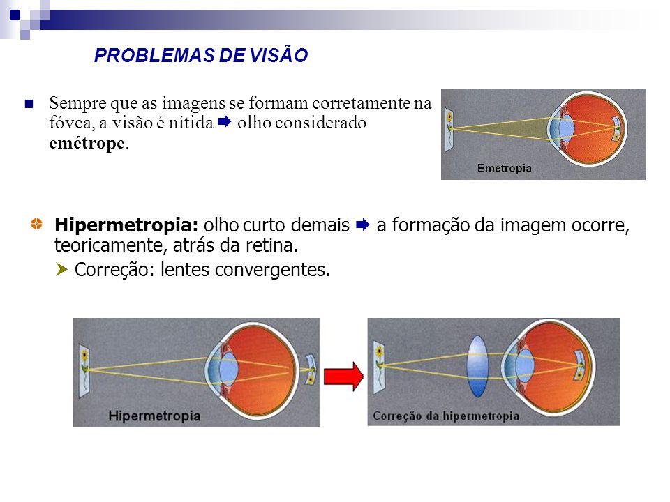 PROBLEMAS DE VISÃO Sempre que as imagens se formam corretamente na fóvea, a visão é nítida olho considerado emétrope. Hipermetropia: olho curto demais