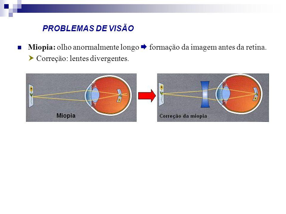PROBLEMAS DE VISÃO Miopia: olho anormalmente longo formação da imagem antes da retina. Correção: lentes divergentes.