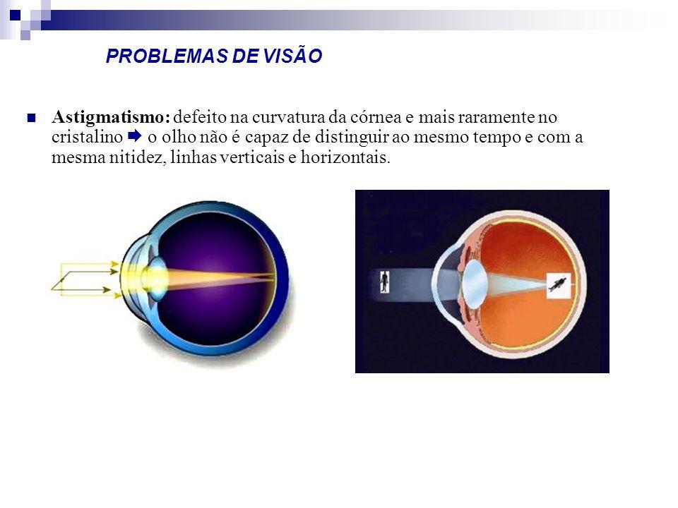 PROBLEMAS DE VISÃO Astigmatismo: defeito na curvatura da córnea e mais raramente no cristalino o olho não é capaz de distinguir ao mesmo tempo e com a