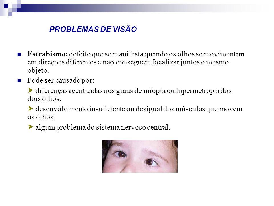 PROBLEMAS DE VISÃO Estrabismo: defeito que se manifesta quando os olhos se movimentam em direções diferentes e não conseguem focalizar juntos o mesmo