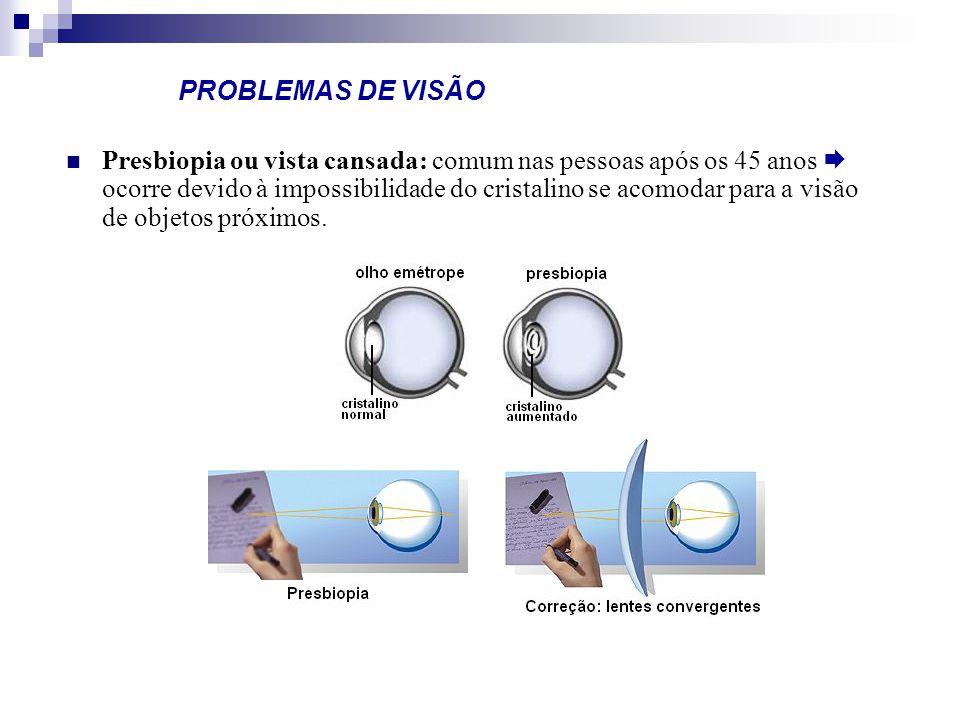 PROBLEMAS DE VISÃO Presbiopia ou vista cansada: comum nas pessoas após os 45 anos ocorre devido à impossibilidade do cristalino se acomodar para a vis