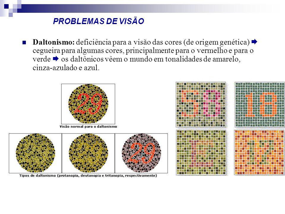 PROBLEMAS DE VISÃO Daltonismo: deficiência para a visão das cores (de origem genética) cegueira para algumas cores, principalmente para o vermelho e p