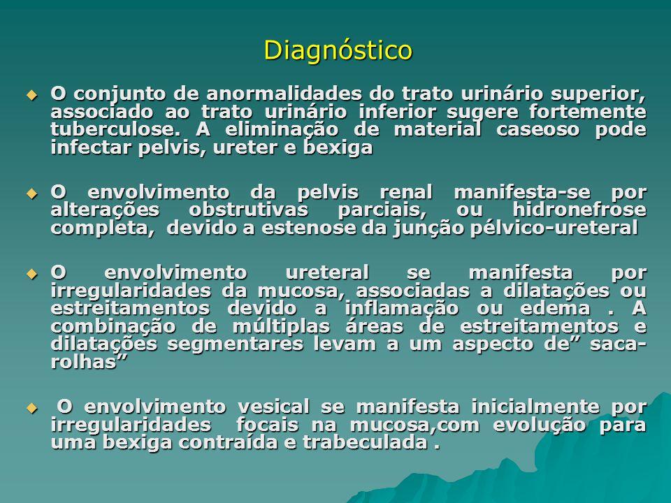 O conjunto de anormalidades do trato urinário superior, associado ao trato urinário inferior sugere fortemente tuberculose. A eliminação de material c