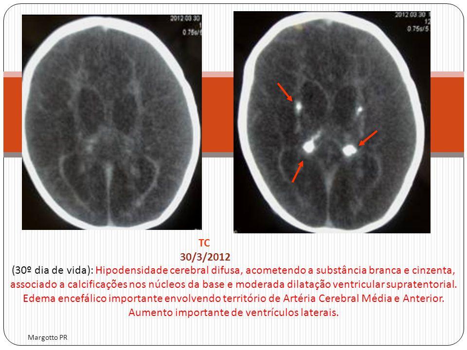 Margotto PR TC 30/3/2012 (30º dia de vida): Hipodensidade cerebral difusa, acometendo a substância branca e cinzenta, associado a calcificações nos nú