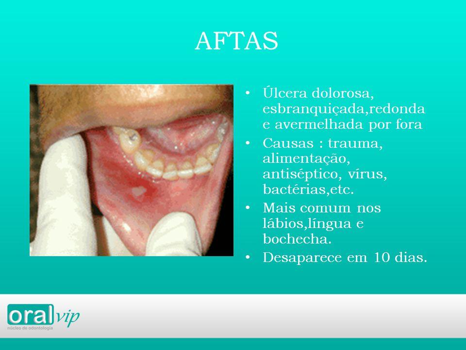 AFTAS Úlcera dolorosa, esbranquiçada,redonda e avermelhada por fora Causas : trauma, alimentação, antiséptico, vírus, bactérias,etc.