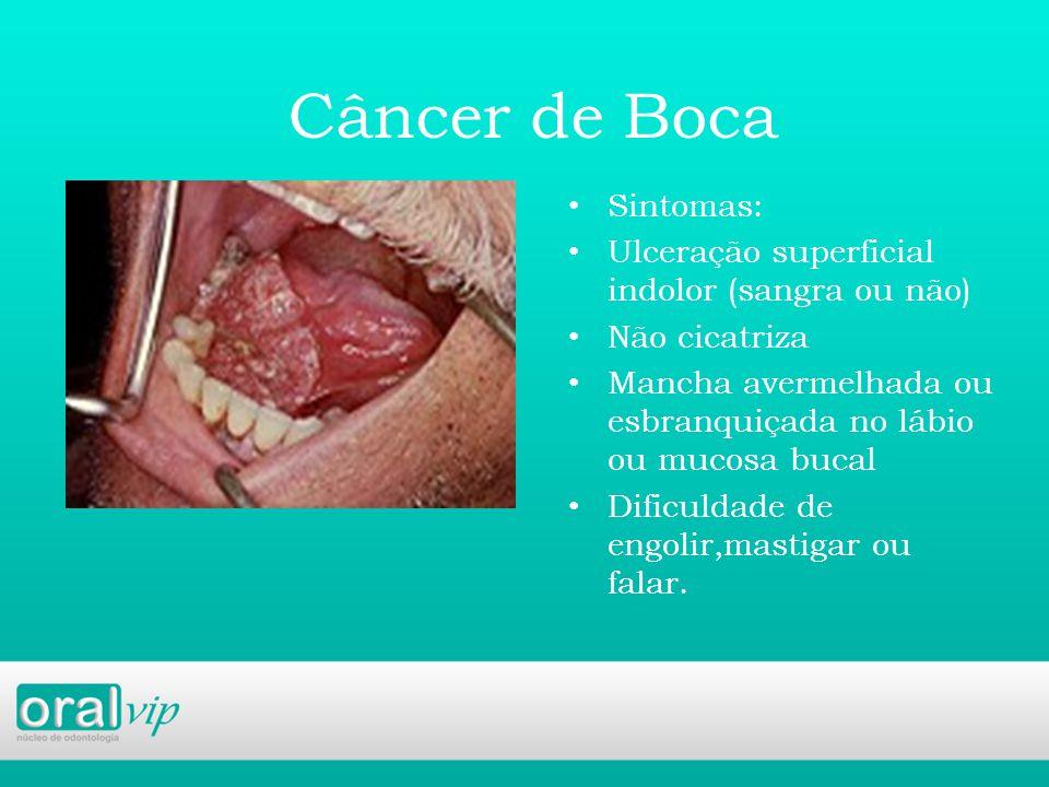 Câncer de Boca Sintomas: Ulceração superficial indolor (sangra ou não) Não cicatriza Mancha avermelhada ou esbranquiçada no lábio ou mucosa bucal Dificuldade de engolir,mastigar ou falar.