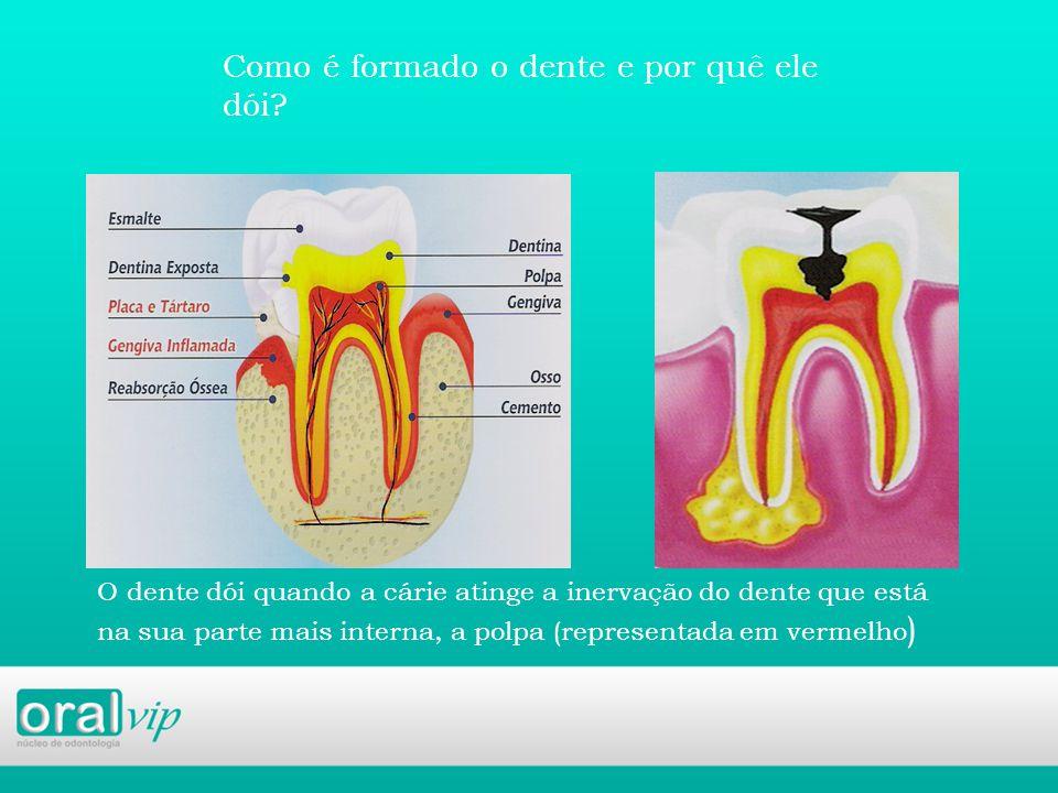 Como é formado o dente e por quê ele dói.