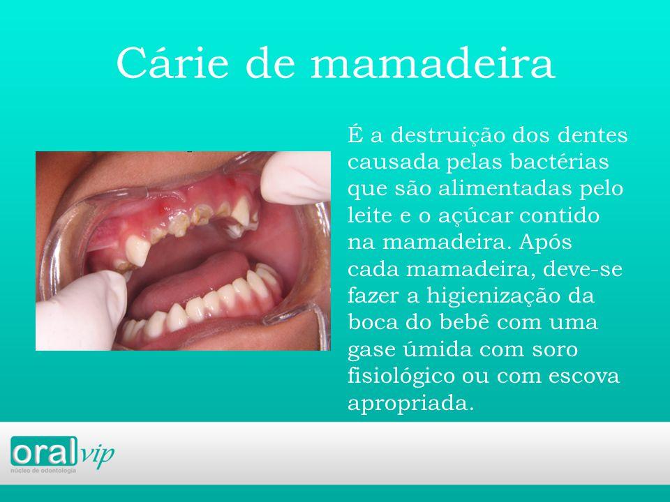Cárie de mamadeira É a destruição dos dentes causada pelas bactérias que são alimentadas pelo leite e o açúcar contido na mamadeira.