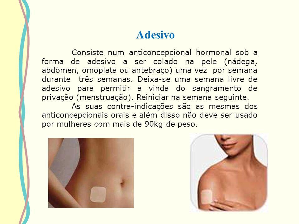 Adesivo Consiste num anticoncepcional hormonal sob a forma de adesivo a ser colado na pele (nádega, abdómen, omoplata ou antebraço) uma vez por semana