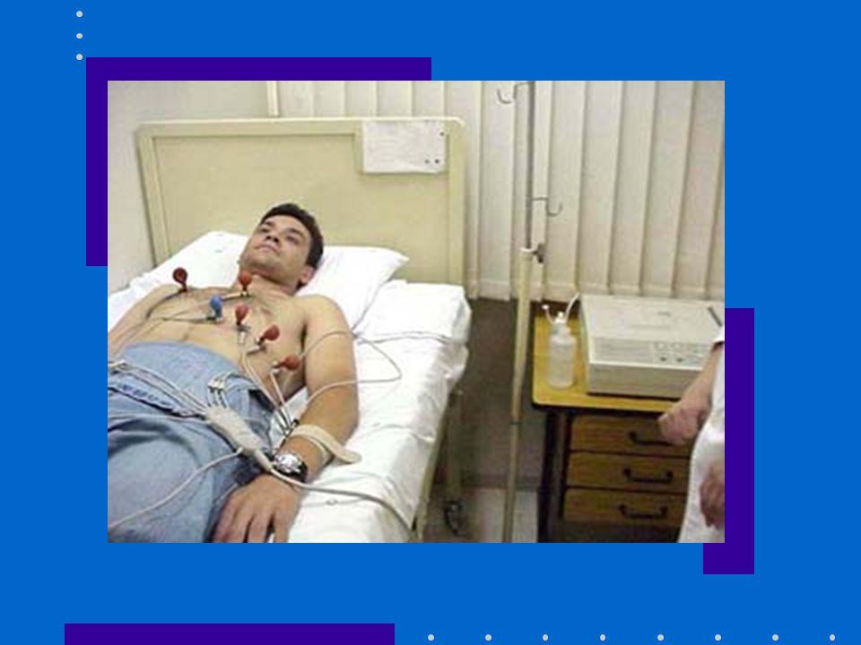 PREPARO: Colocar o paciente deitado, posicionar os eletrodos periféricos e precordiais, retirar objetos metálicos e afastar pés e mãos das grades da cama.