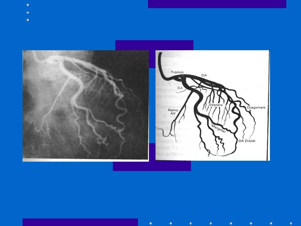 VARIAÇÕES TERAPÊUTICAS: - Angioplastia: Desobstrução de artéria coronária ou ponte de safena que esteja comprometida por uma placa de gordura ou um co