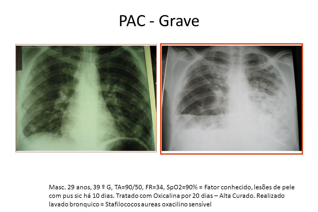 PAC - Grave Masc. 29 anos, 39 º G, TA=90/50, FR=34, SpO2=90% = Fator conhecido, lesões de pele com pus sic há 10 dias. Tratado com Oxicalina por 20 di