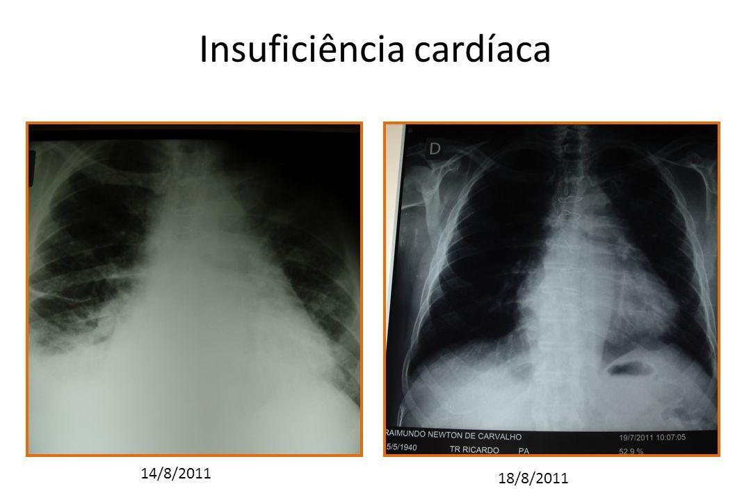 Insuficiência cardíaca 14/8/2011 18/8/2011