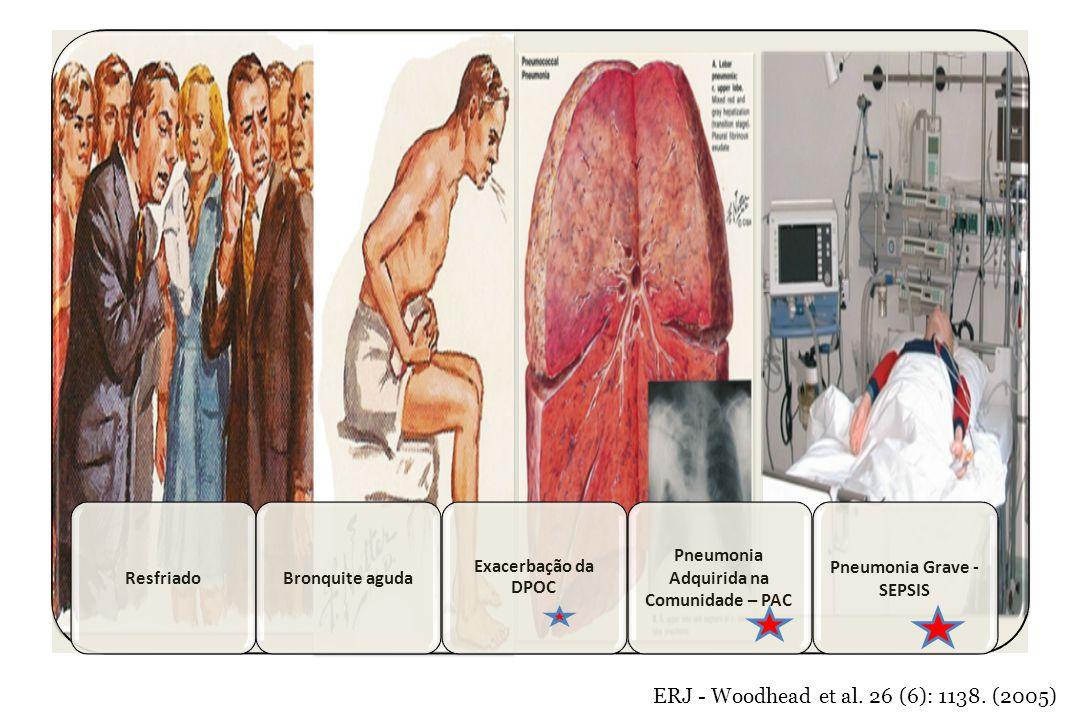 ERJ - Woodhead et al. 26 (6): 1138. (2005) ResfriadoBronquite aguda Exacerbação da DPOC Pneumonia Adquirida na Comunidade – PAC Pneumonia Grave - SEPS