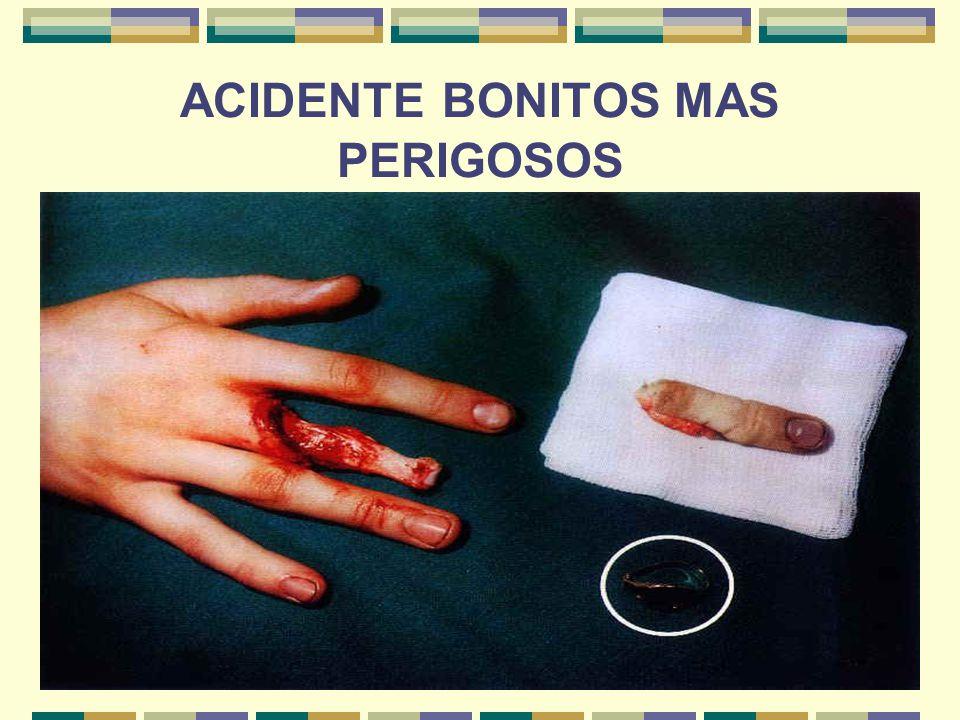 13 ACIDENTE BONITOS MAS PERIGOSOS