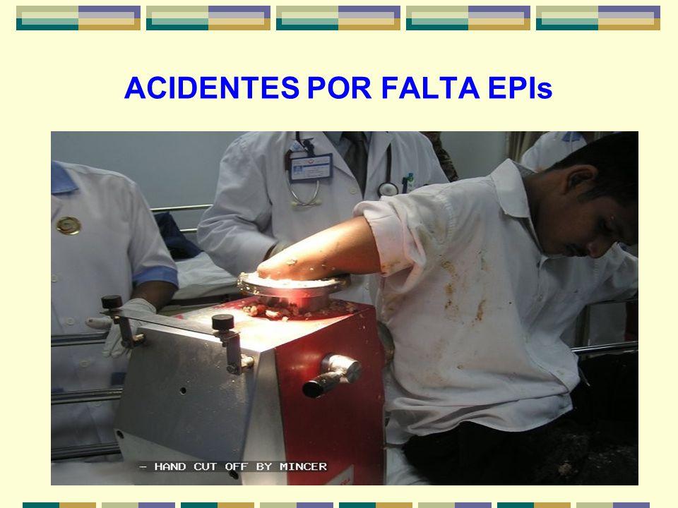 20 ACIDENTES POR FALTA EPIs