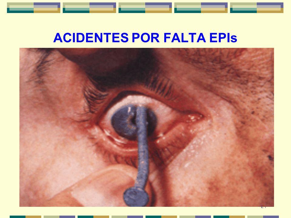 24 ACIDENTES POR FALTA EPIs