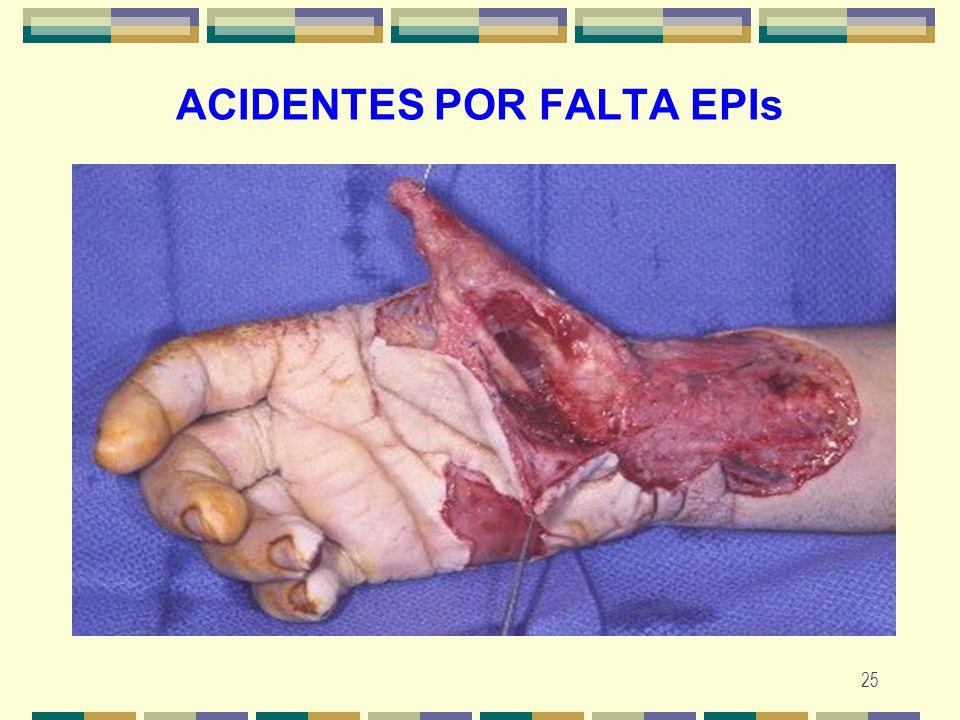 25 ACIDENTES POR FALTA EPIs