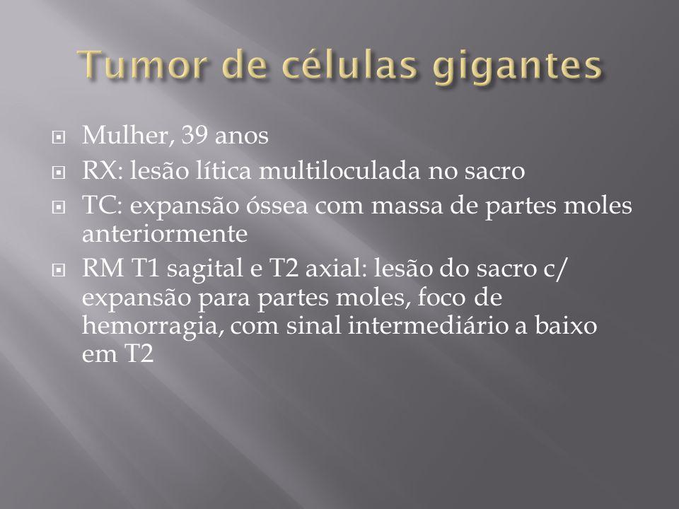 Mulher, 39 anos RX: lesão lítica multiloculada no sacro TC: expansão óssea com massa de partes moles anteriormente RM T1 sagital e T2 axial: lesão do