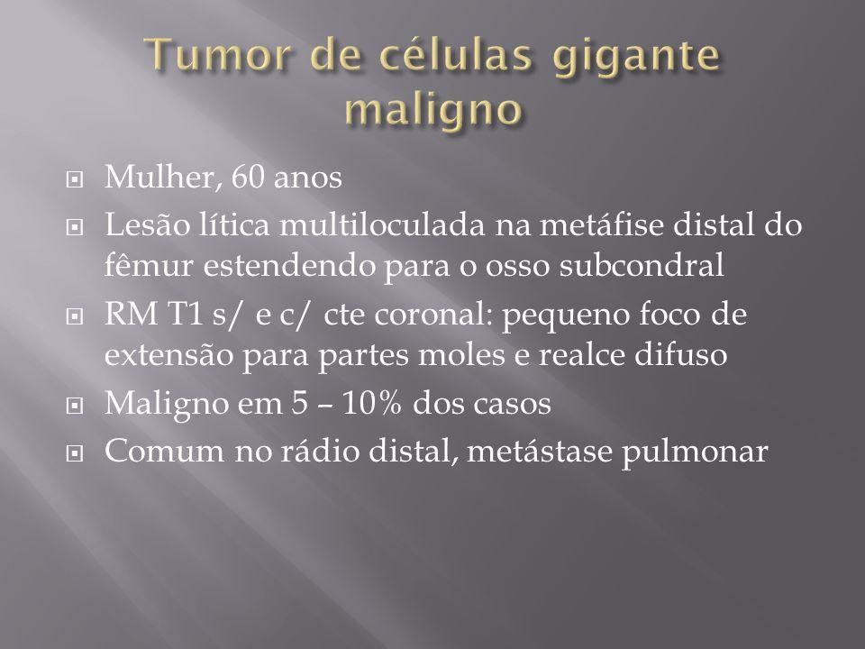 Mulher, 60 anos Lesão lítica multiloculada na metáfise distal do fêmur estendendo para o osso subcondral RM T1 s/ e c/ cte coronal: pequeno foco de ex