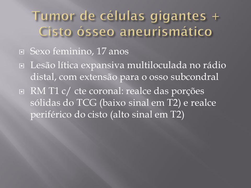 Sexo feminino, 17 anos Lesão lítica expansiva multiloculada no rádio distal, com extensão para o osso subcondral RM T1 c/ cte coronal: realce das porç