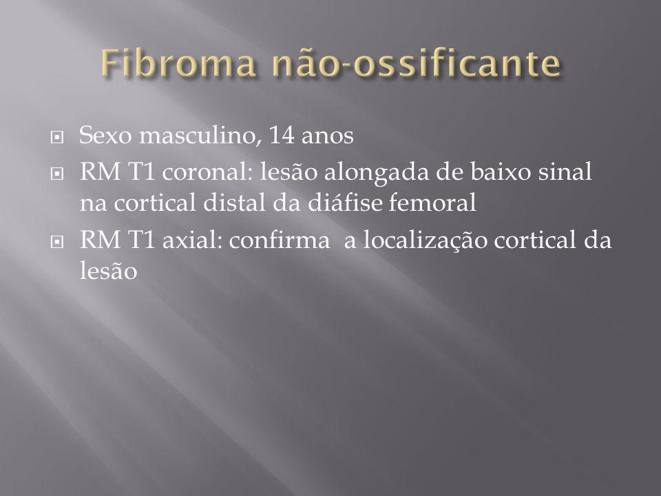 Sexo masculino, 14 anos RM T1 coronal: lesão alongada de baixo sinal na cortical distal da diáfise femoral RM T1 axial: confirma a localização cortica