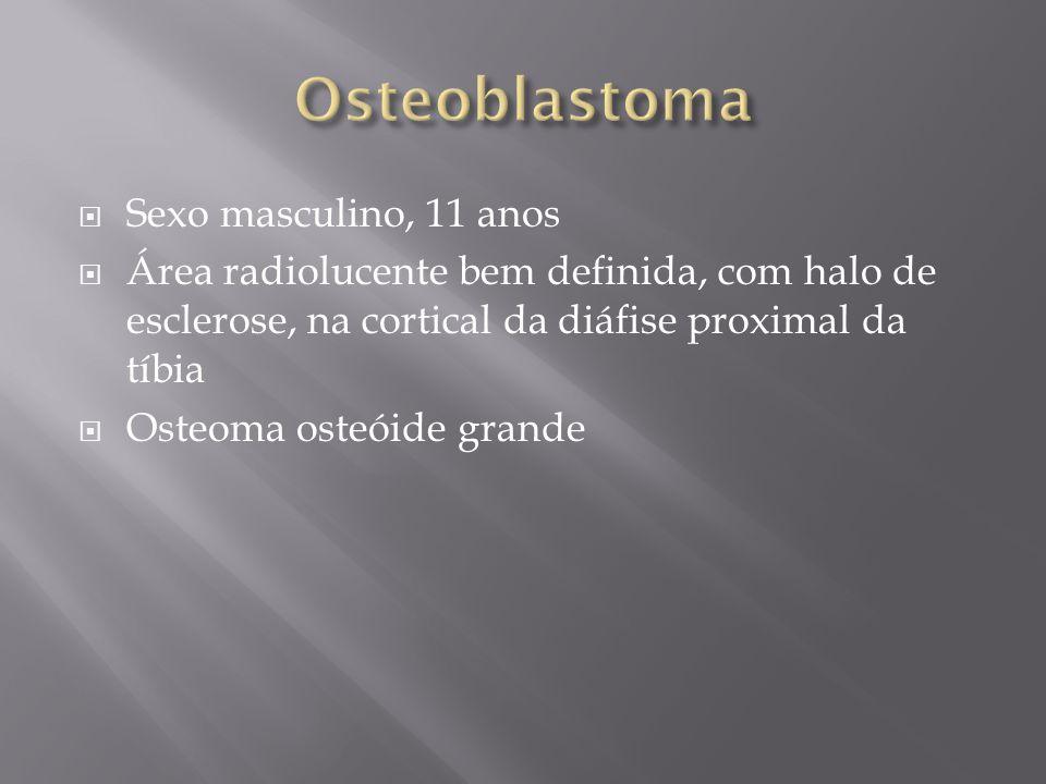 Sexo masculino, 11 anos Área radiolucente bem definida, com halo de esclerose, na cortical da diáfise proximal da tíbia Osteoma osteóide grande