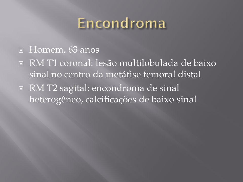 Homem, 63 anos RM T1 coronal: lesão multilobulada de baixo sinal no centro da metáfise femoral distal RM T2 sagital: encondroma de sinal heterogêneo,