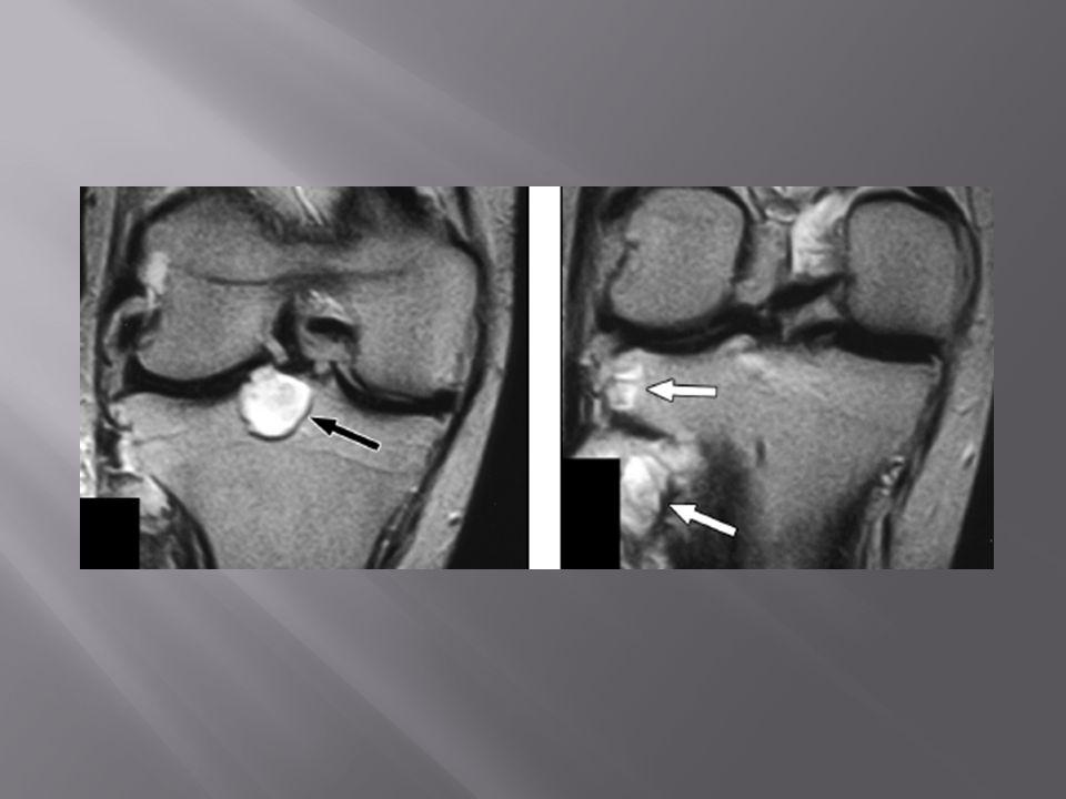 Sexo feminino, 17 anos Lesão lítica expansiva multiloculada no rádio distal, com extensão para o osso subcondral RM T1 c/ cte coronal: realce das porções sólidas do TCG (baixo sinal em T2) e realce periférico do cisto (alto sinal em T2)
