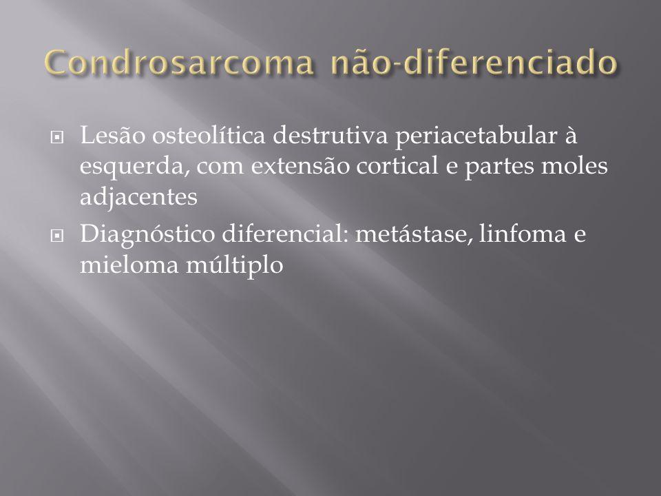 Lesão osteolítica destrutiva periacetabular à esquerda, com extensão cortical e partes moles adjacentes Diagnóstico diferencial: metástase, linfoma e