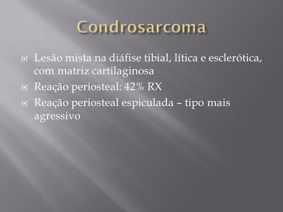 Lesão mista na diáfise tibial, lítica e esclerótica, com matriz cartilaginosa Reação periosteal: 42% RX Reação periosteal espiculada – tipo mais agres