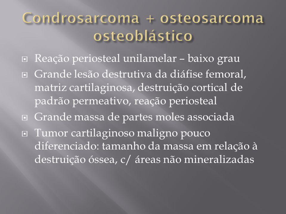 Reação periosteal unilamelar – baixo grau Grande lesão destrutiva da diáfise femoral, matriz cartilaginosa, destruição cortical de padrão permeativo,