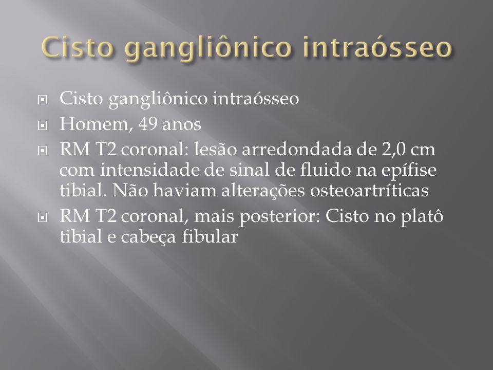 Cisto gangliônico intraósseo Homem, 49 anos RM T2 coronal: lesão arredondada de 2,0 cm com intensidade de sinal de fluido na epífise tibial. Não havia
